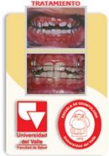 588386_27906_Especialización-en-odontología-pediátrica-y-ortopedia-maxilar_07_07